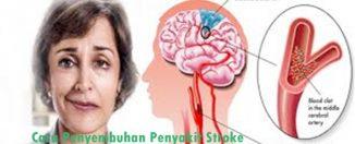 Cara Penyembuhan Penyakit Stroke
