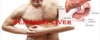 Cara Penyembuhan Penyakit Liver